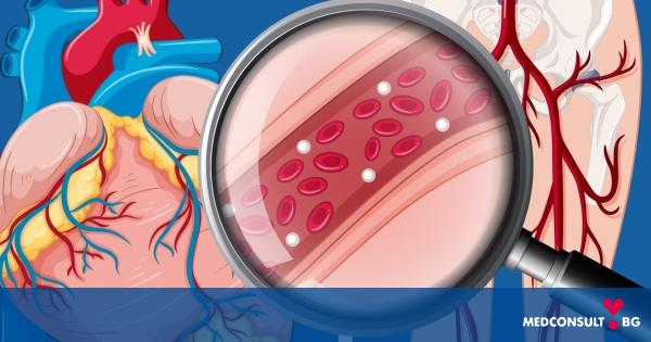 Кампанията за профилактика на исхемичната болест на сърцето и периферната съдова болест през месец юли в Русе
