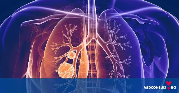 Какво води до развитието на рак на белия дроб и какви са симптомите
